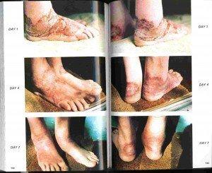 feet-300x245