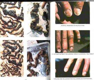 mucoid-plaque-e1333453194961-300x255